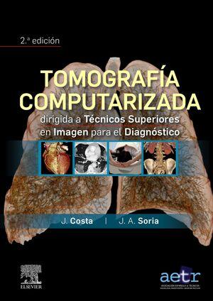 TOMOGRAFIA COMPUTARIZADA DIRIGIDA TEN.SUPER.IMAGEN